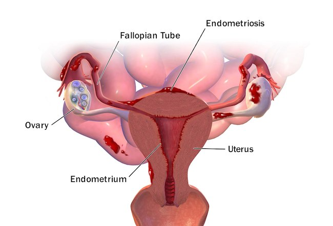 image of endometriosis anatomy and physiology courses